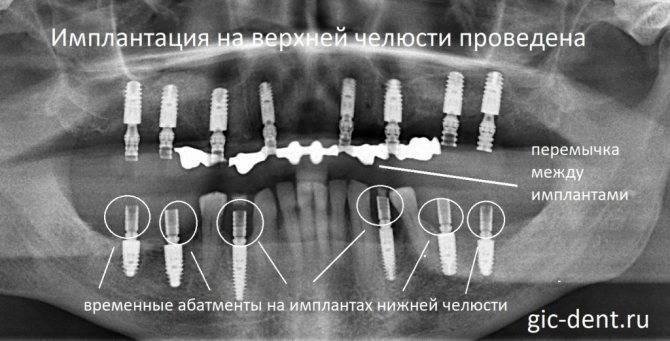 Можно ли проводить имплантацию зубов при сахарном диабете