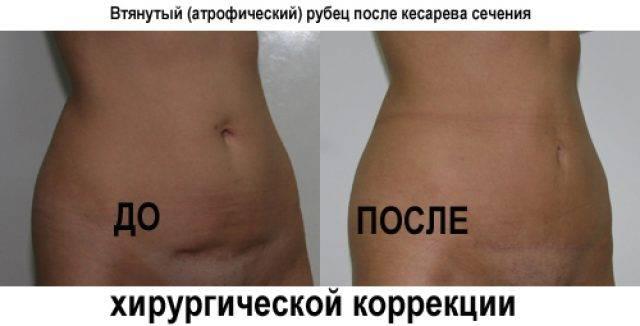 Удаление шрама после кесарево сечения лазером