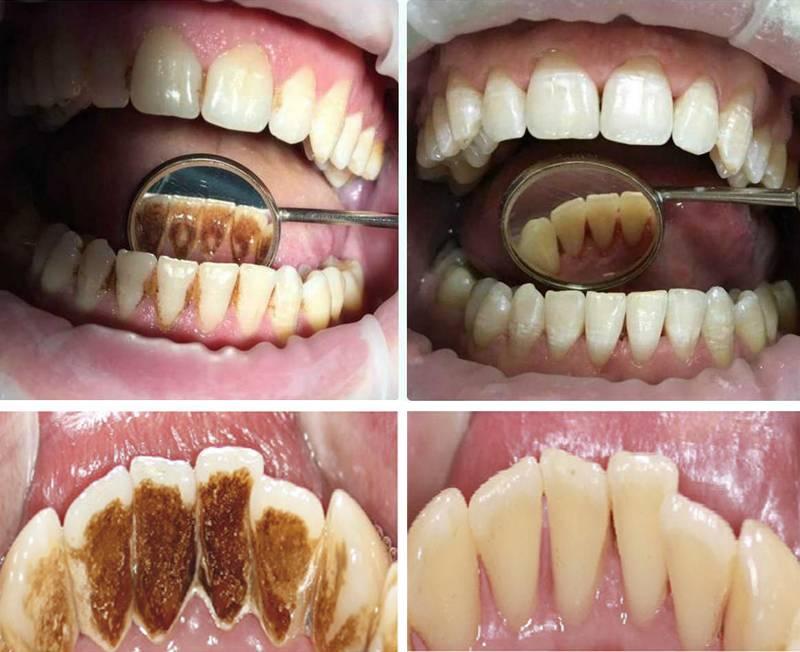 Через сколько можно кушать после чистки зубов