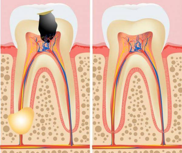 Почему при нажатии на зуб появляется зубная боль