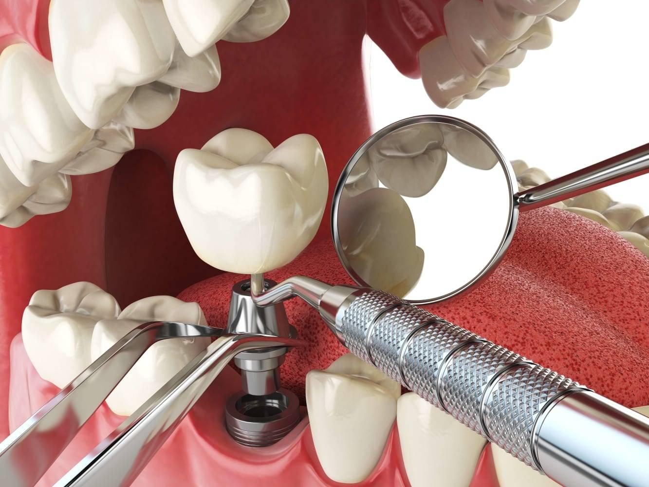 Все за и против метода компрессионной имплантации зубов