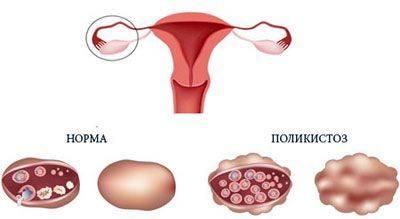 Эффективные методы лечения поликистоза яичников