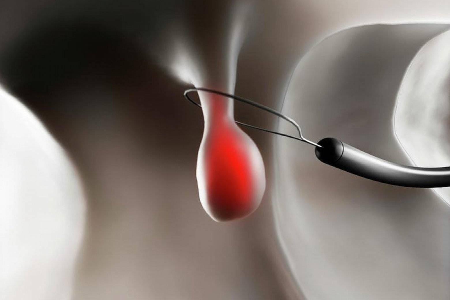 Удаление полипа уретры у женщин операция