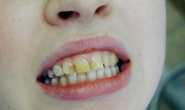 Флюороз зубов: лечение и профилактика