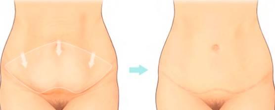Аккуратная подтяжка живота с помощью миниабдоминопластики