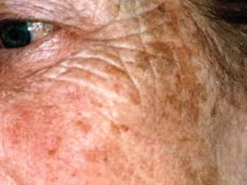 Кожные заболевания на фото с названиями и описанием