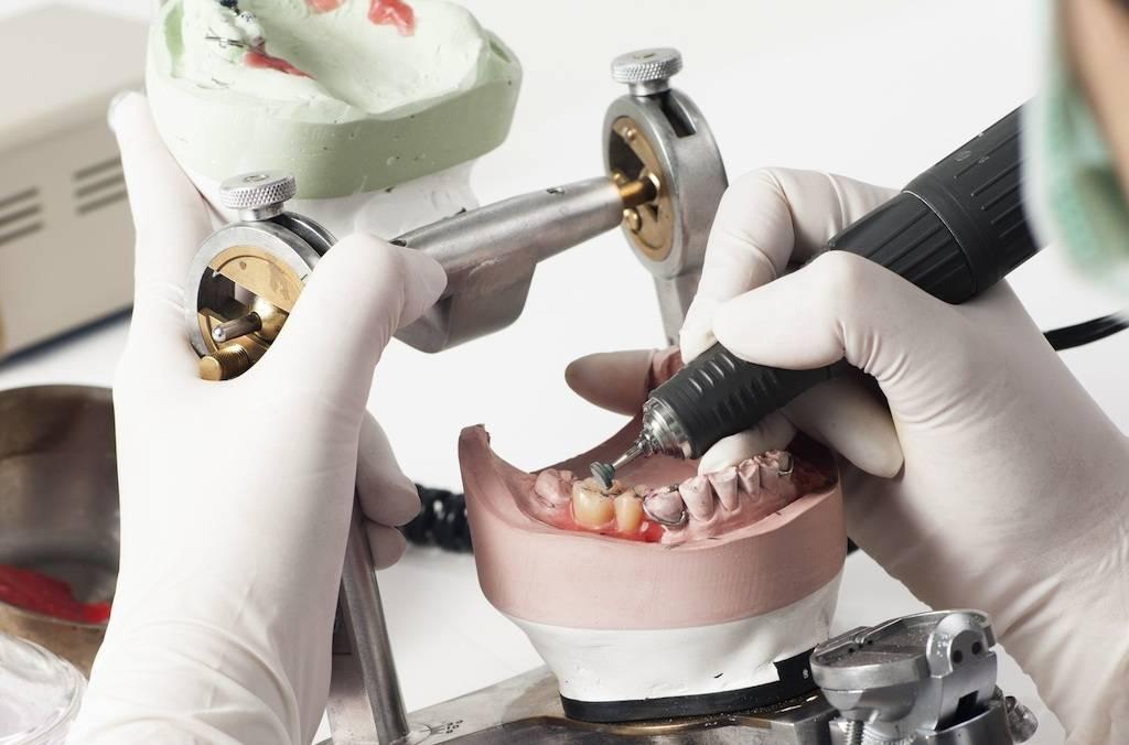 Зубное протезирование: особенности и техники выполнения