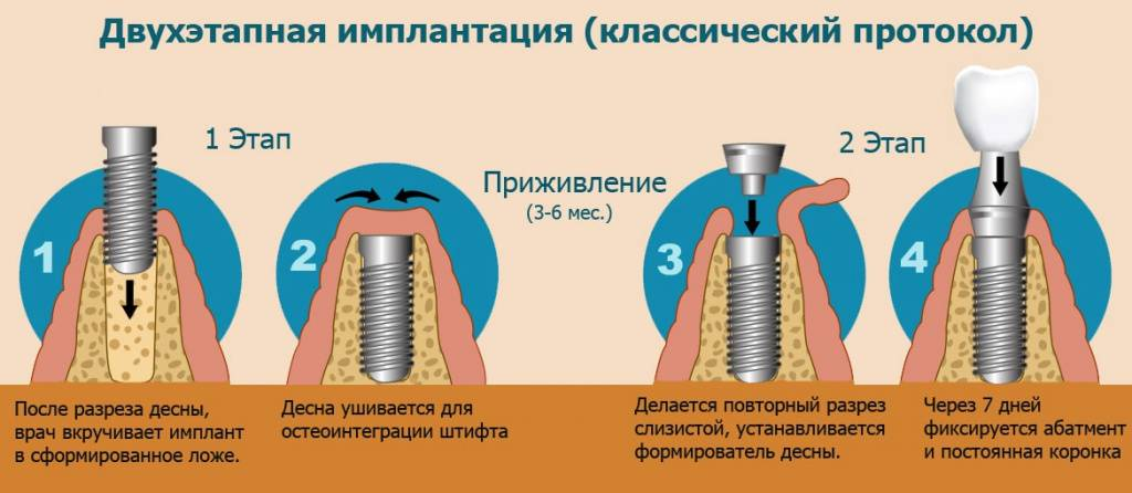 Установка зубного импланта: методики, этапы операции, сроки, цены в москве