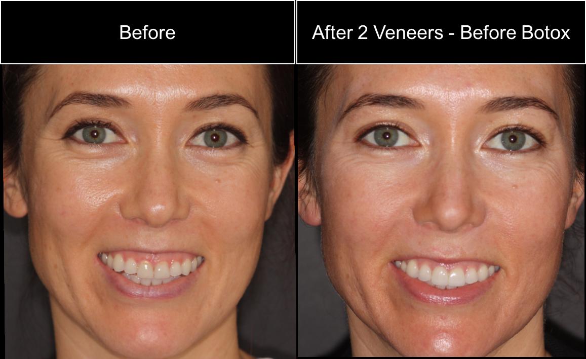 Десневая улыбка. методы коррекции. пример коррекции десневой улыбки ботоксом (botox).