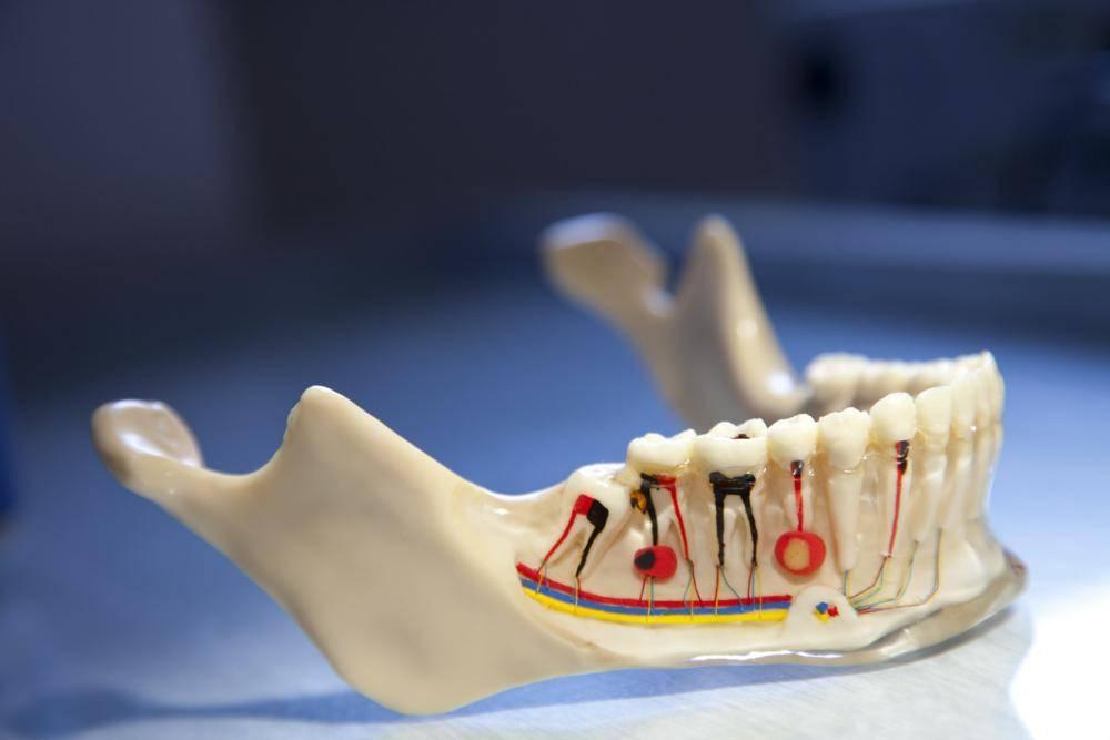 Как и чем убить зубной нерв самому в домашних условиях