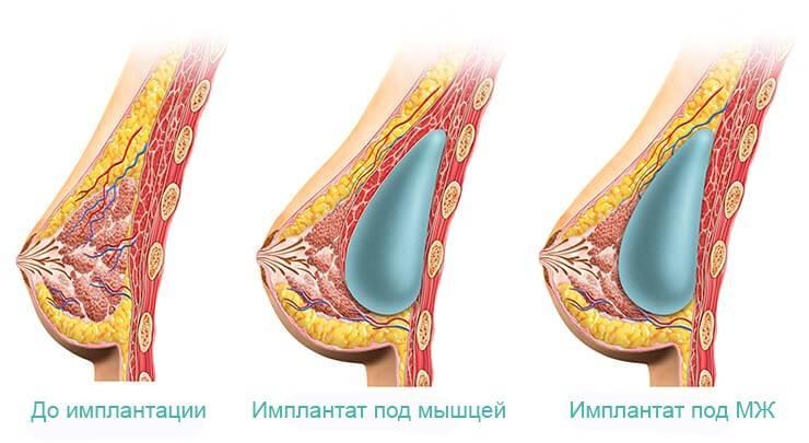 Реабилитация после маммопластики по дням, ограничения, как ухаживать