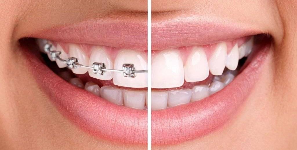 Выравнивание зубов при помощи элайнеров