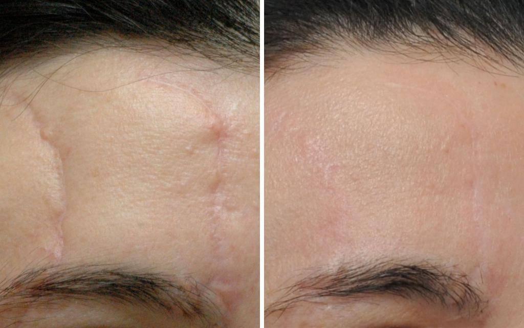 Как убрать шрамы после ожогов 2 и 3 степени – кремы, мази, хирургия и другие способы лечения