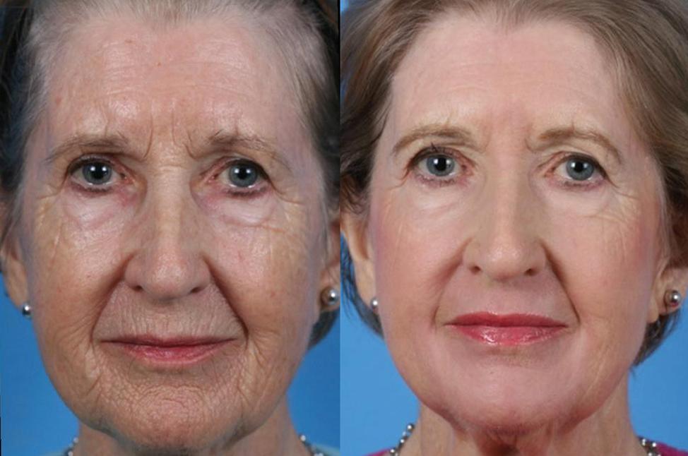 Омолаживающие уколы для лица после 40 — 45 лет