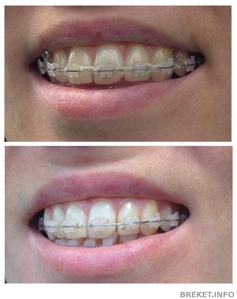 Что дает сепарация в ортодонтии. сепарация зубов как элемент эстетической стоматологии