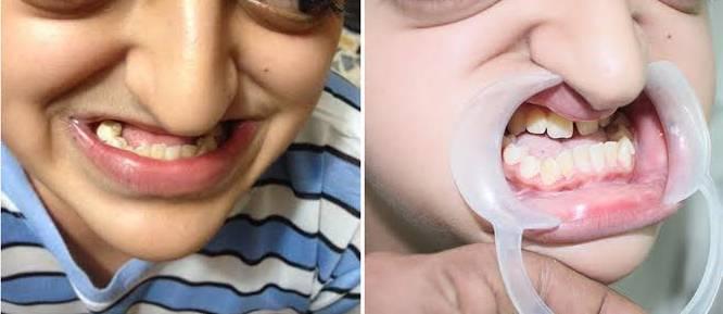 Неправильный прикус у ребенка: способы исправления