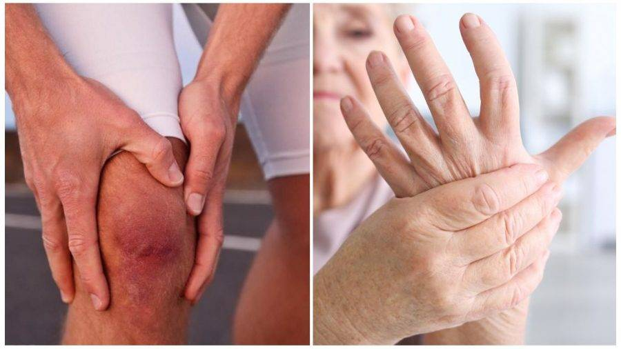 Боль в суставах при климаксе: причины и что делать