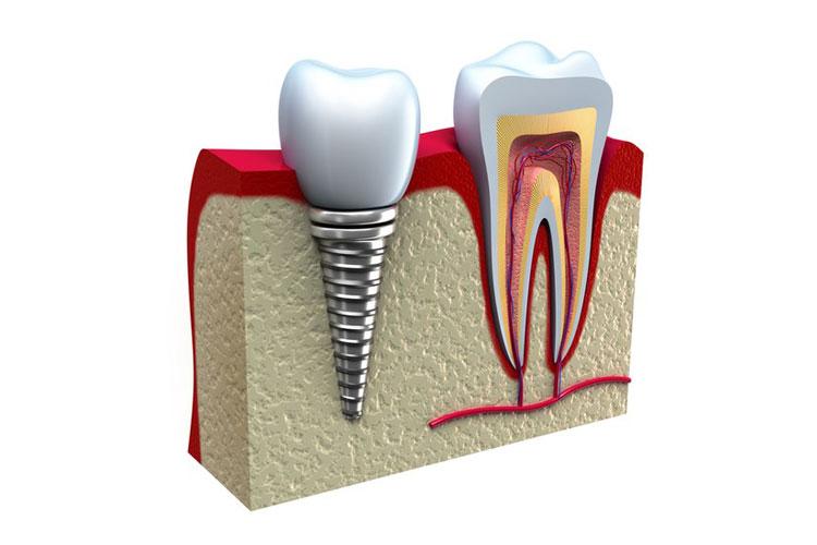 Какие противопоказания и возможные осложнения могут быть у имплантации зубов. почему отторгаются импланты