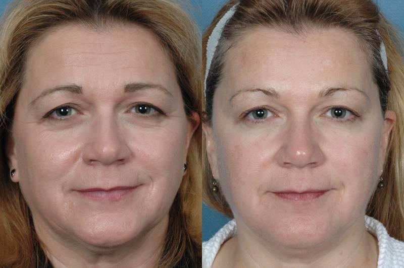 Противопоказания инъекций с гиалуроновой кислотой: кому категорически запрещены уколы красоты