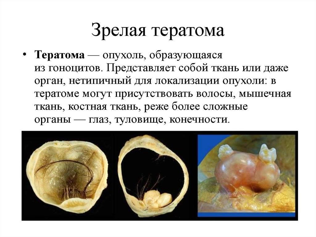 Тератома яичника: разновидности, симптомы и лечение