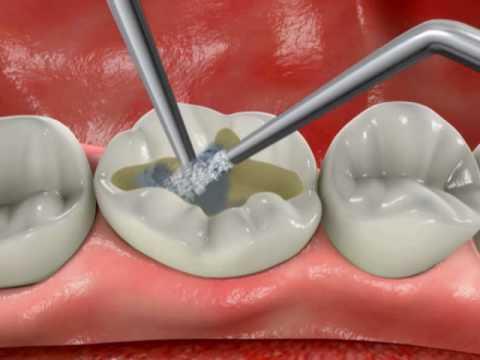 Почему лучше восстановление зубов коронкой, а не пломбой?