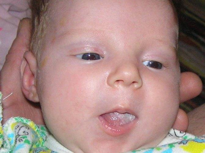 Почему появляются во рту у ребенка язвочки