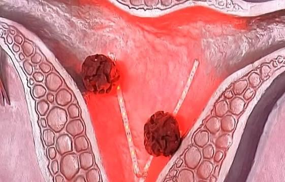 Фиброма матки – что это такое, как распознать симптомы, причины и лечение (+фото)