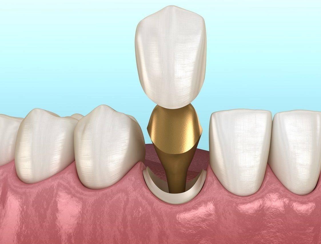 Установка вкладки на зуб под коронку: преимущества и недостатки стоматологического метода