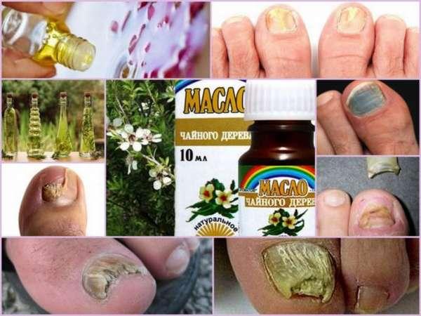 """""""лечим грибок ногтей маслом чайного дерева — рецепты комплексного применения масла"""""""