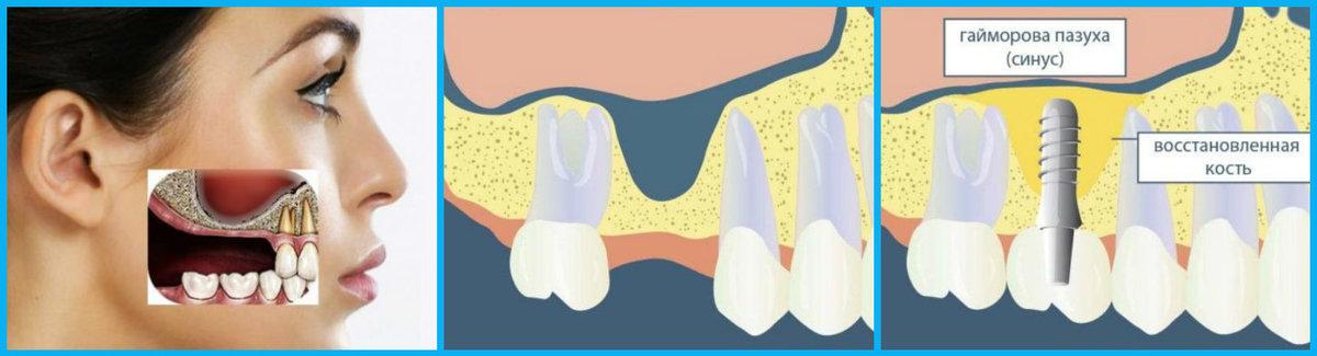 Наполнитель, заменяющий костную ткань при имплантации зубов