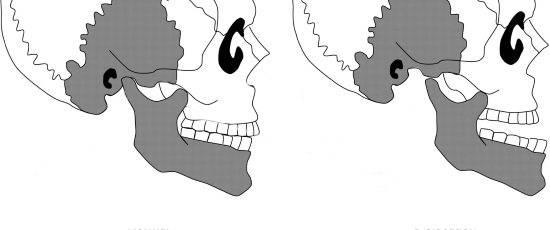 Рентген внчс