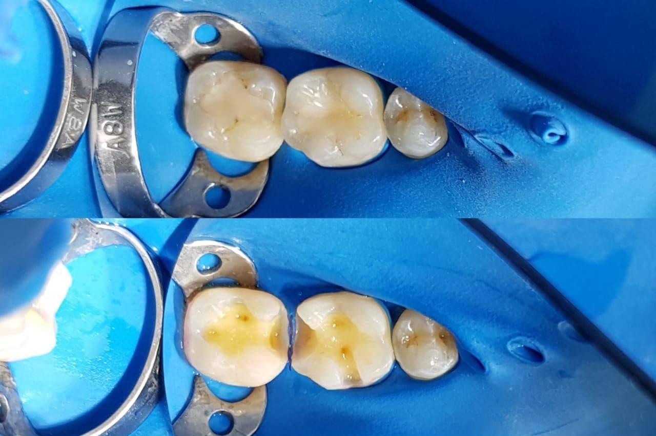 Что делать, если под пломбой почернел зуб