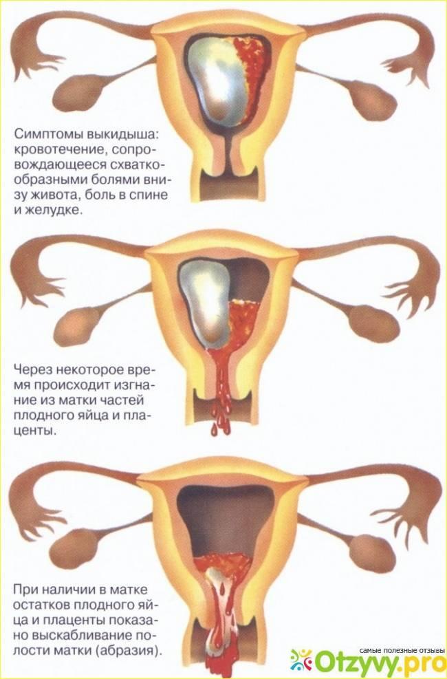 Можно ли делать эпиляцию беременным: противопоказания, возможные последствия