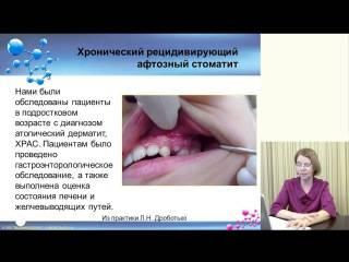 Причины и лечение хронического стоматита у взрослого и ребенка