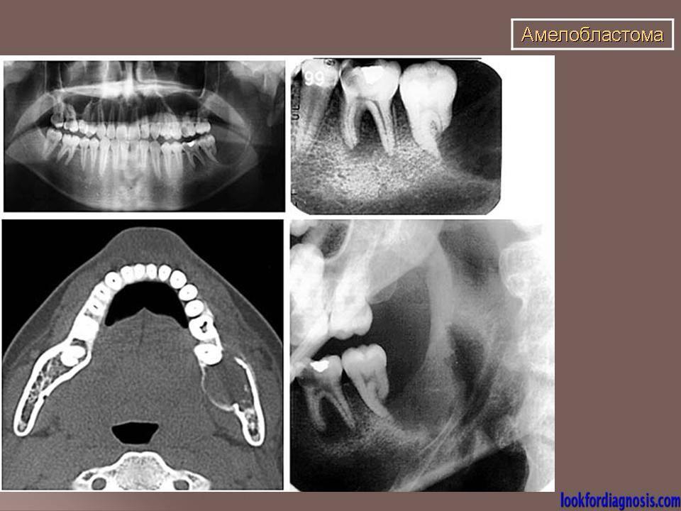 Амелобластома челюсти