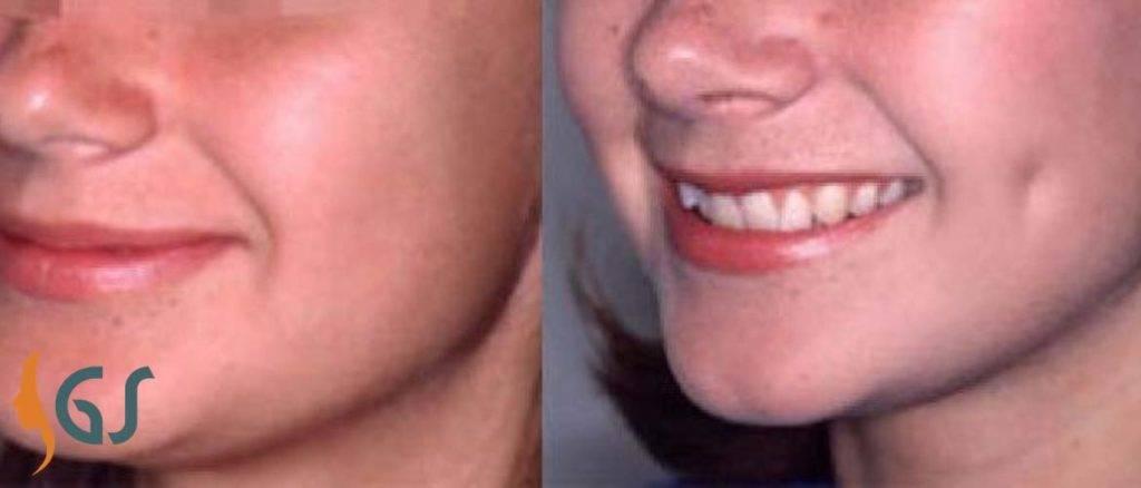 Что обозначают ямочки на щеках и как их можно сделать