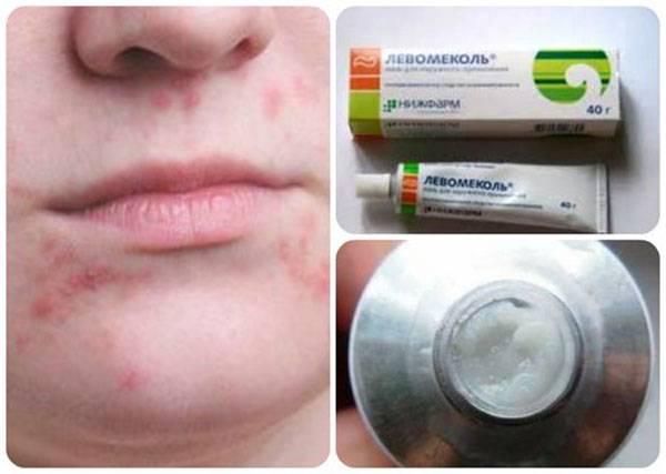 Эффективность зубной пасты против герпеса