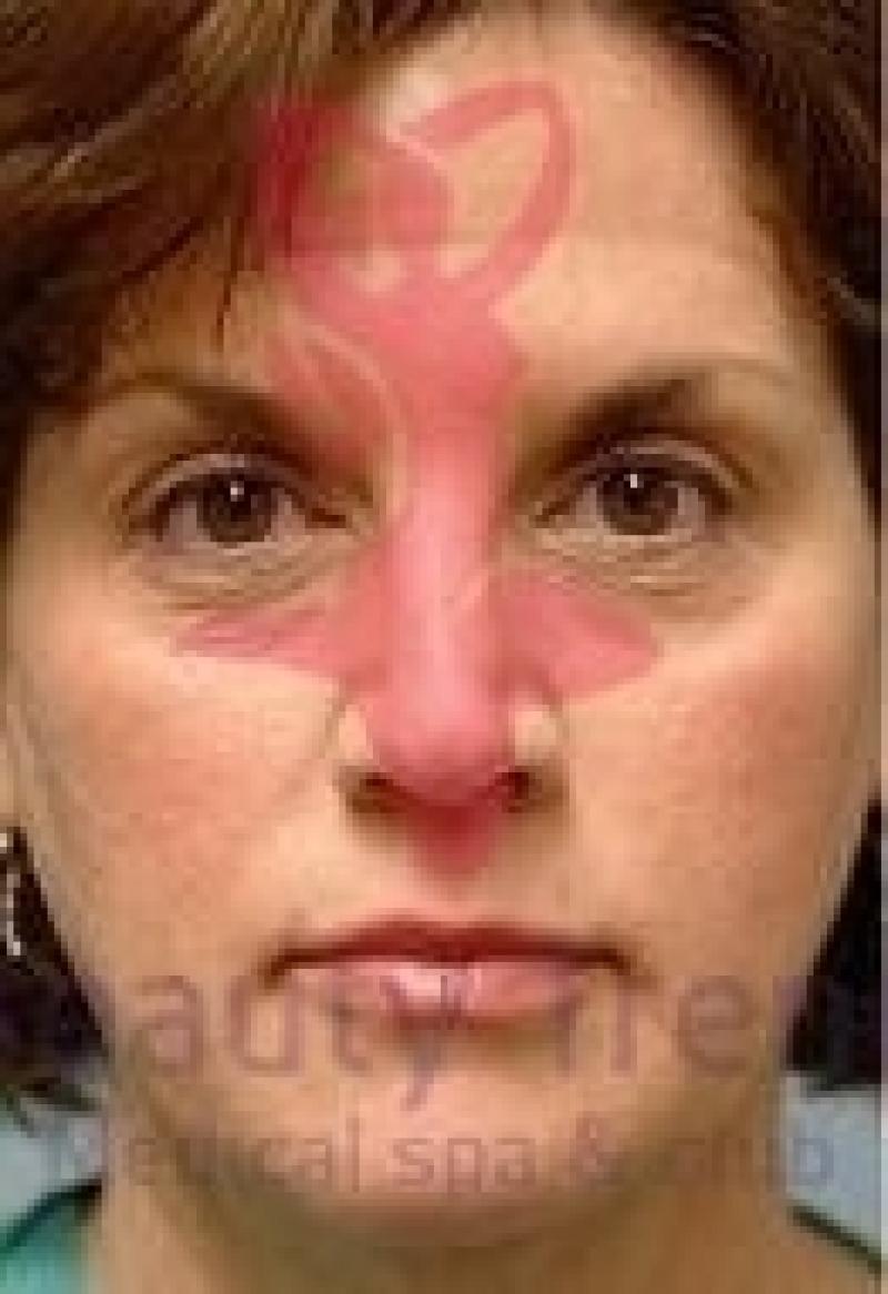 Правда ли что пиявки помогают от морщин на лице