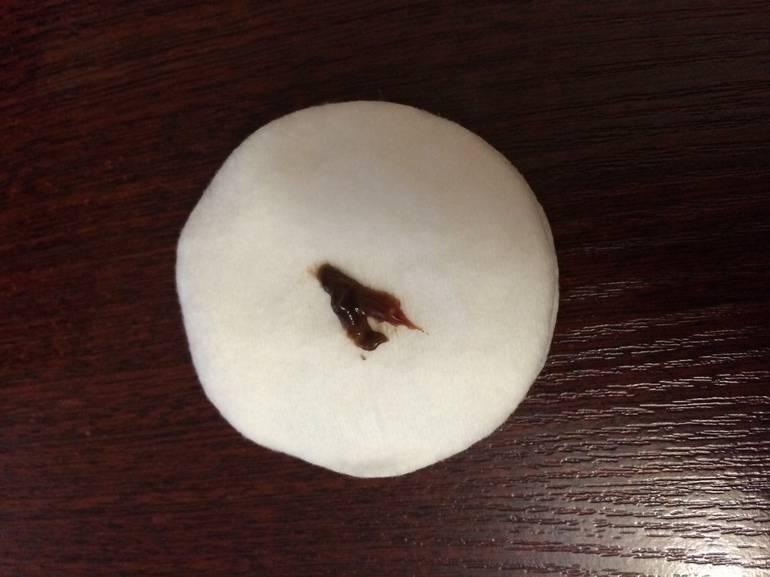 Чем могут быть вызваны коричневые выделения перед месячными?
