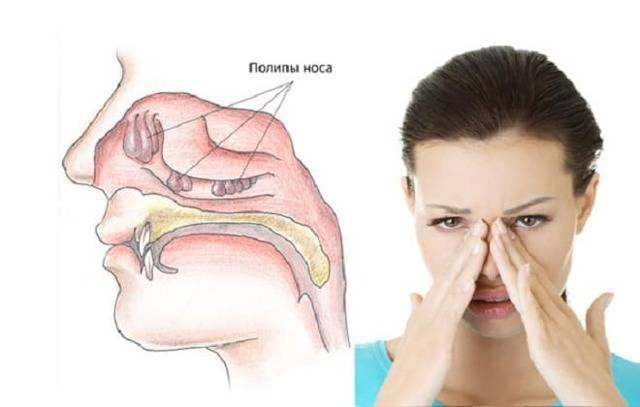 Как лечить полипы в носу — эффективное лечение народными средствами, без операций