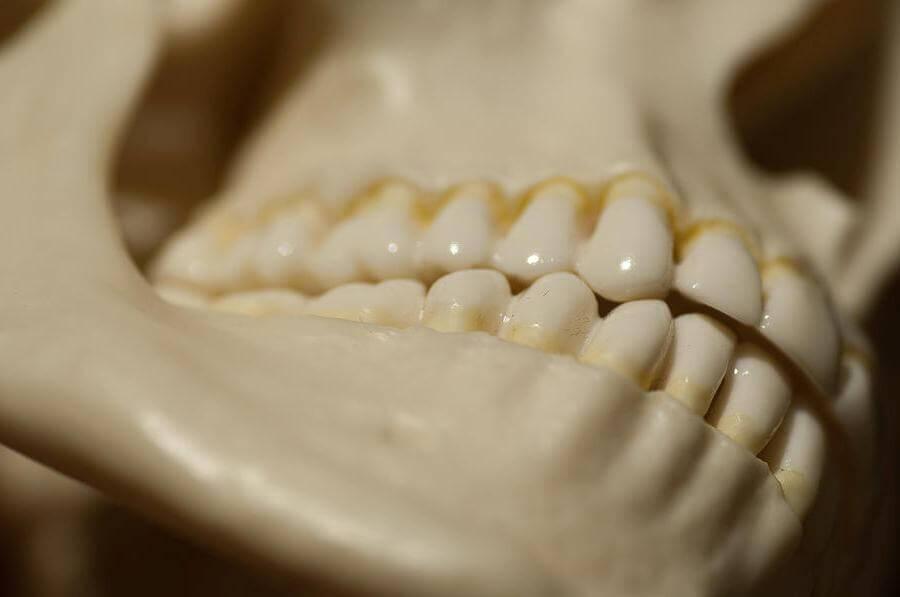 Почему щелкает челюсть и как от этого избавиться?
