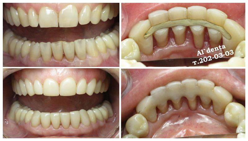 Брекеты при пародонтозе, пародонтите, на один зуб и на коронки — показания и противопоказания