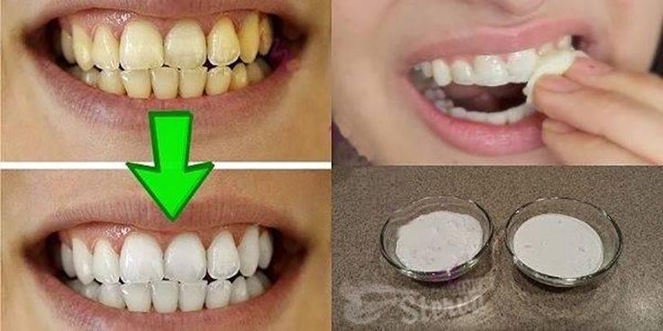 Желтые зубы: фото – почему желтеет эмаль у взрослых, что делать и как отбелить?