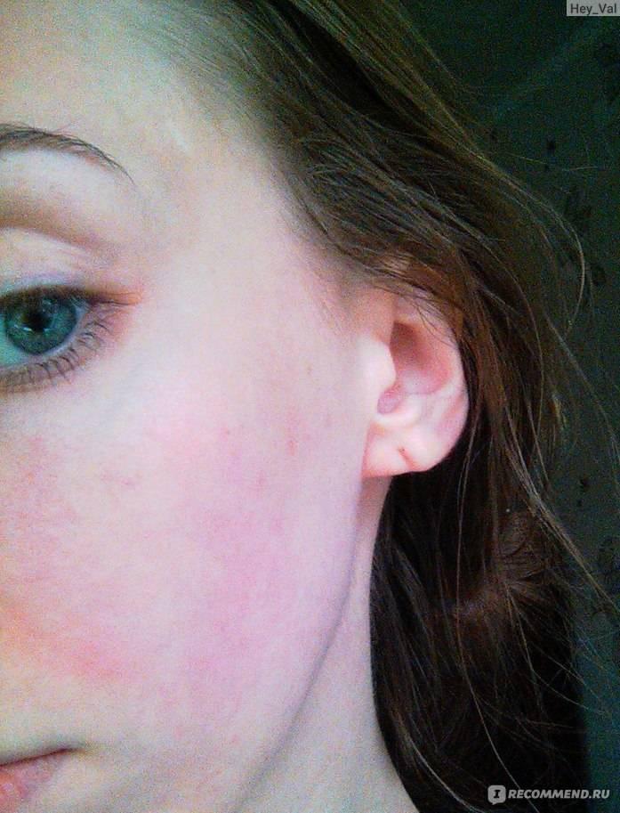 Аллергия на лице причины