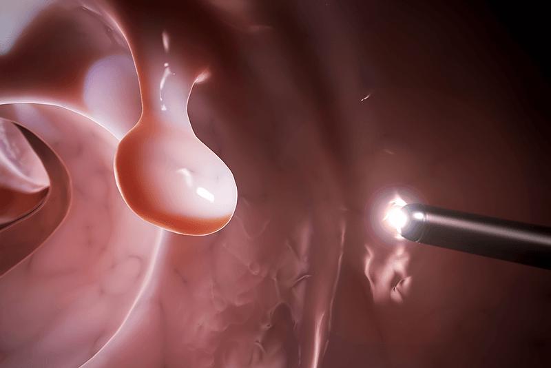 Какие симптомы проявления полипа (полипоза) кишечника и в ободочной кишке у взрослых
