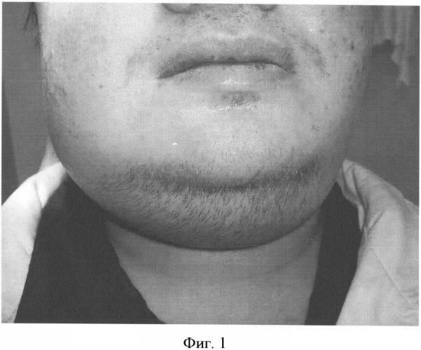 Флегмона дна полости рта