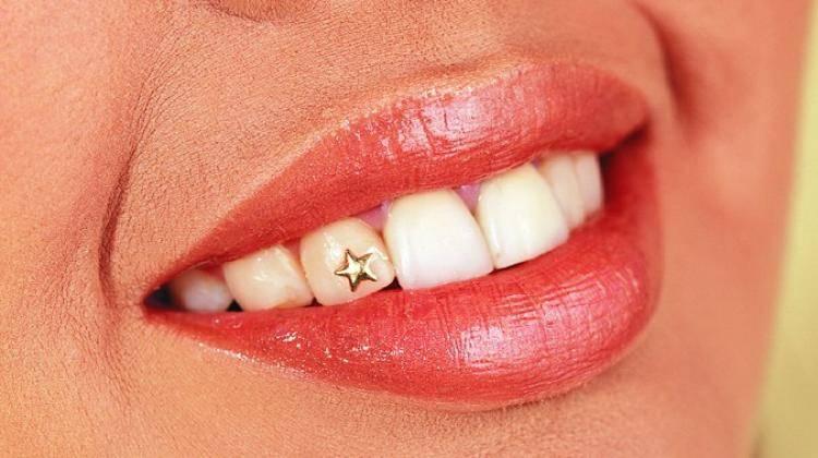 Скайсы или стразы на зуб. скайсы из украшения для зубов для взрослых превратились в общее увлечение молодежи украшение на зубы скайсы