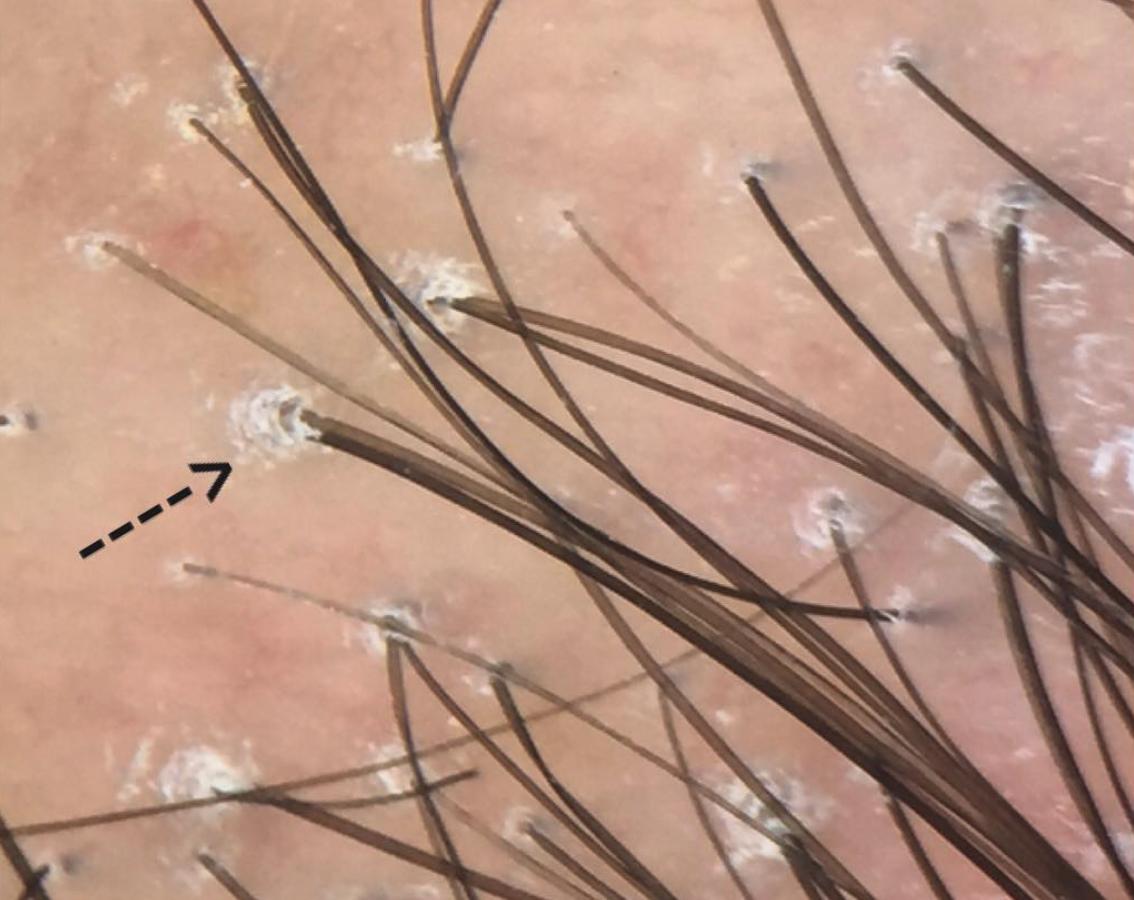 Здоровая луковица волоса фото