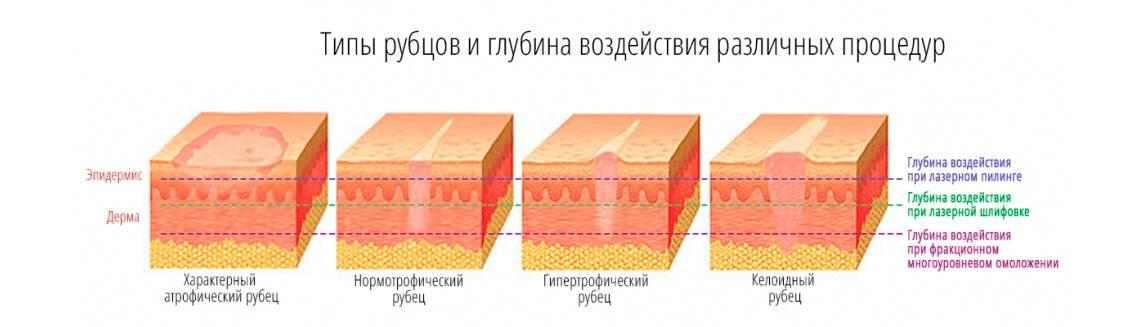 Методы лечения атрофических рубцов от угревой сыпи