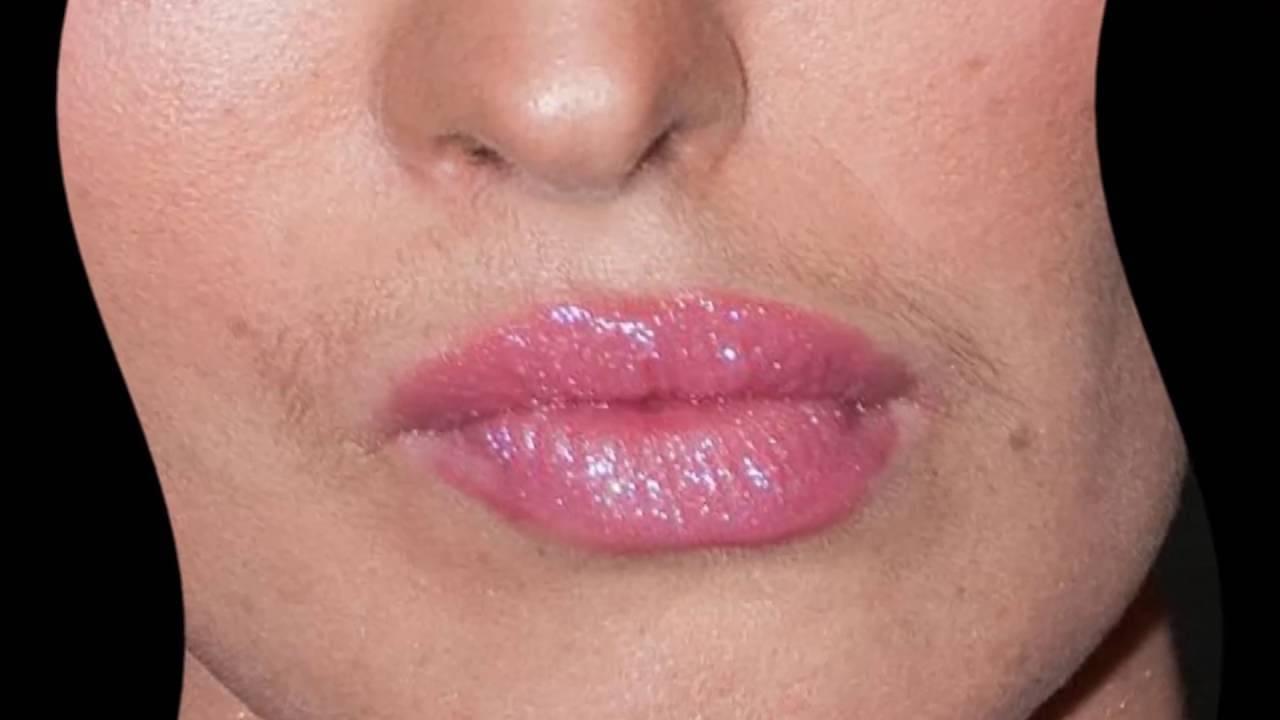 Как в домашних условиях избавиться от усиков над верхней губой?
